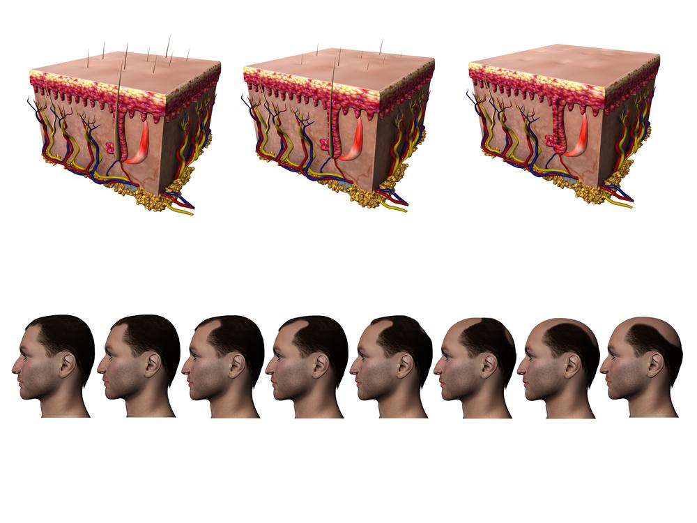 Evolución alopecia androgenética de patrón masculino